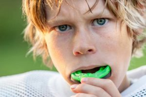 Custom Made Mouthguard