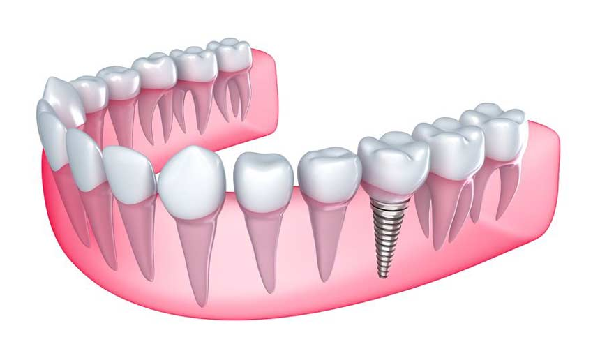 Advantage-of-Cosmetic-Dentures-over-Dental-Implants