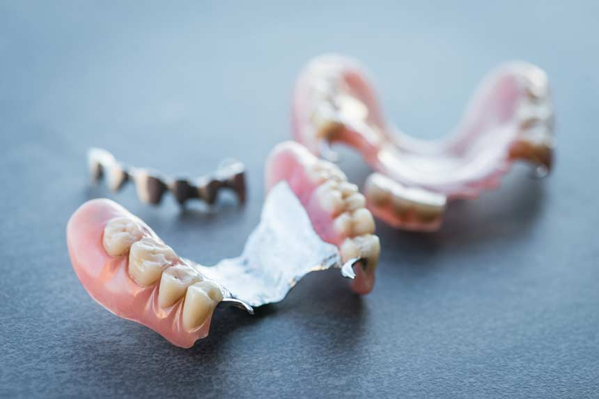 When is a Denture Replacement needed?