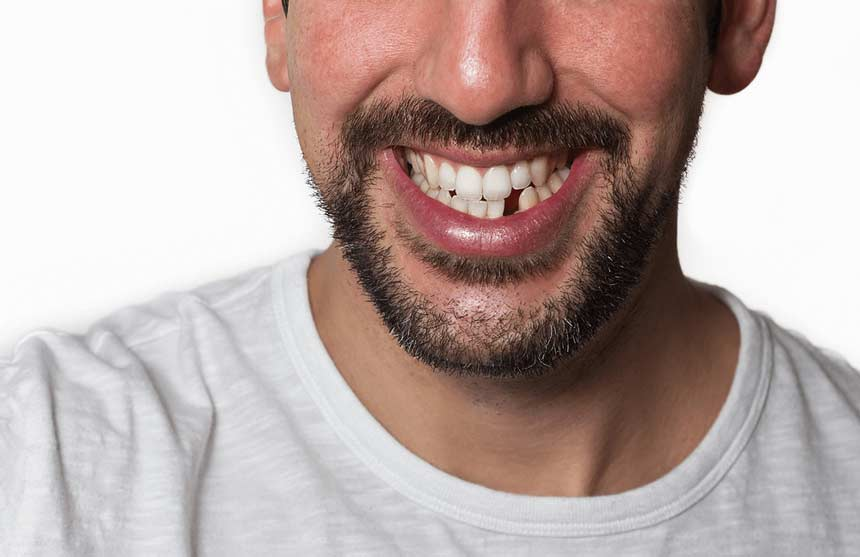 Lost a tooth | Direct-Denture-Care