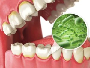 Bacteria on Teeth