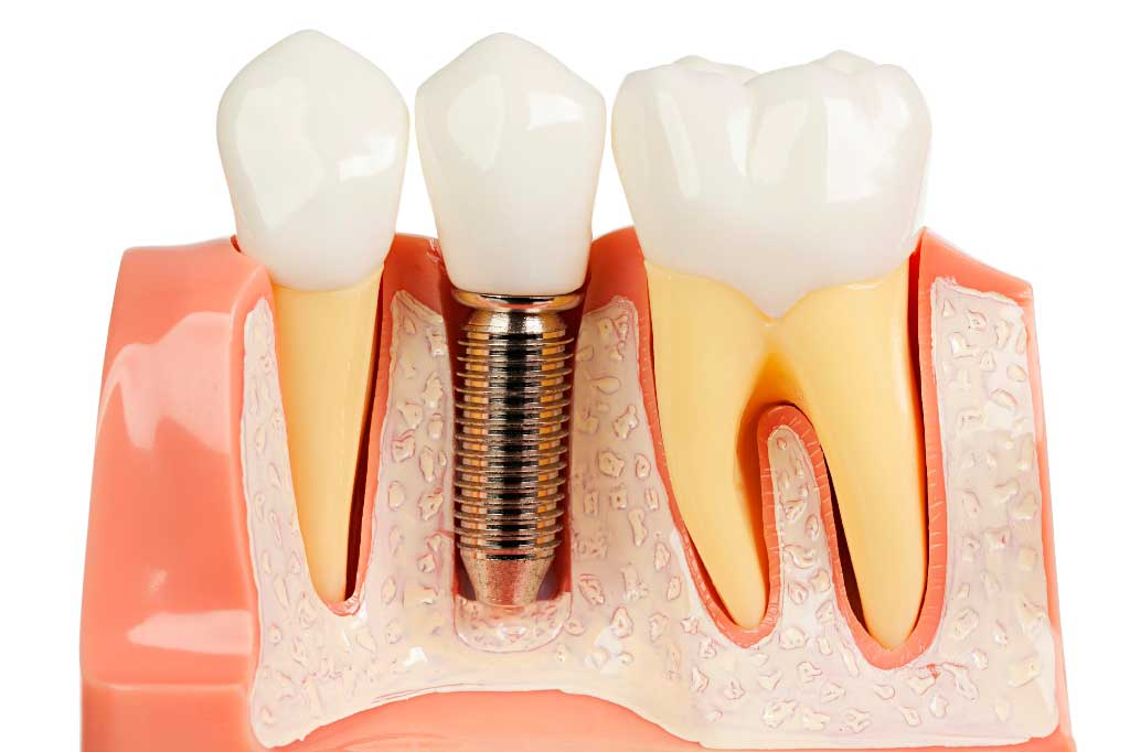 Dental Implants Perth WA