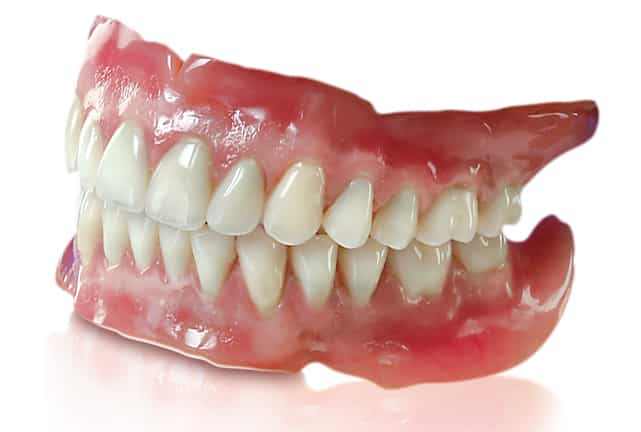 What are the benefits of dentures?