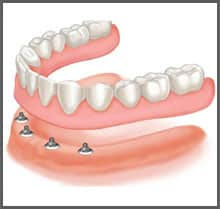 Fixed Dentures | Direct Denture