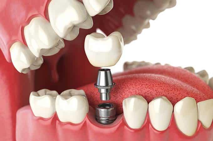 Denture Implant   Direct Denture