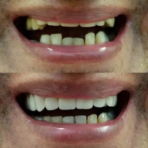 Before After Cosmetic Dentures by Direct Denture Care in Perth