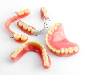 Denture Repair in Perth by Direct Denture Care