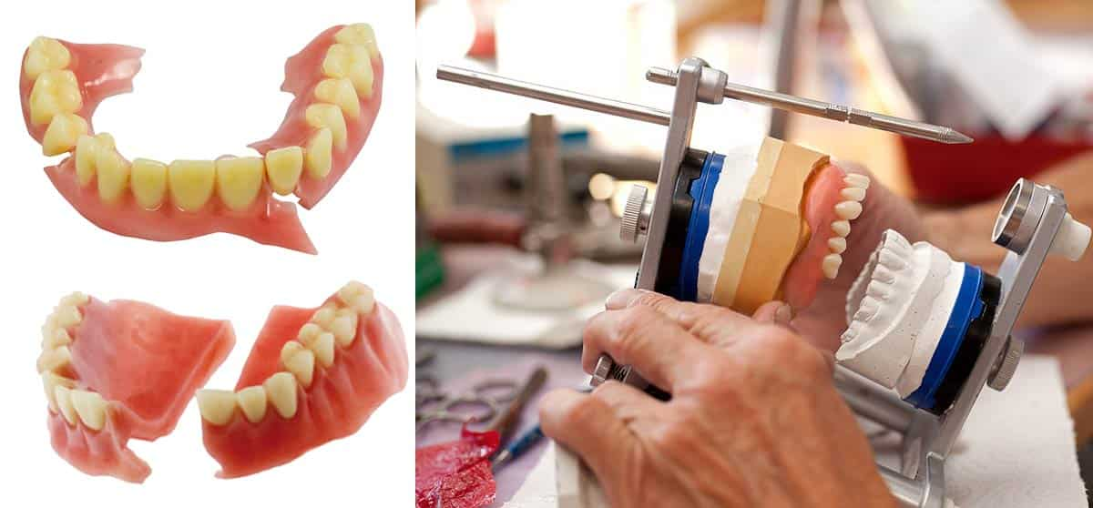 Emergency Denture Repairs