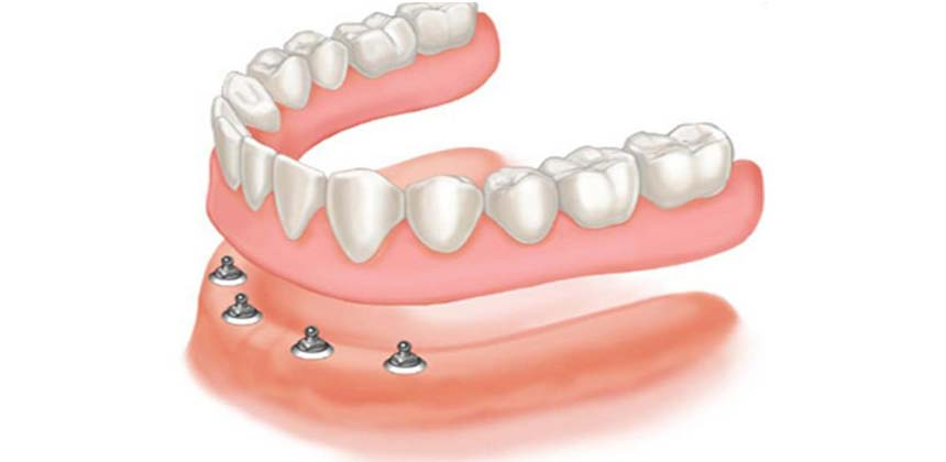 Implant overdentures Denture from Denture Clinic Perth