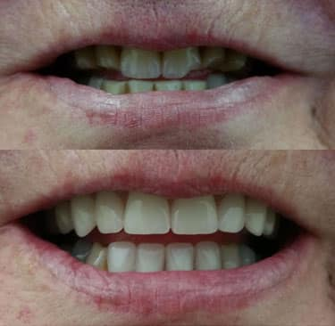 Dental Image before and after