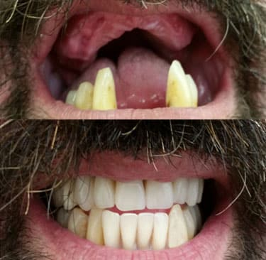 Dentures Perth Before and After