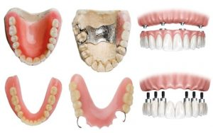 What is the best Denture type for you? Direct Denture Care
