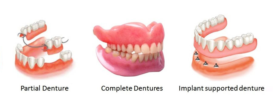 denure-types_complete-dentures_partial-dentures_implant-supported-dentures
